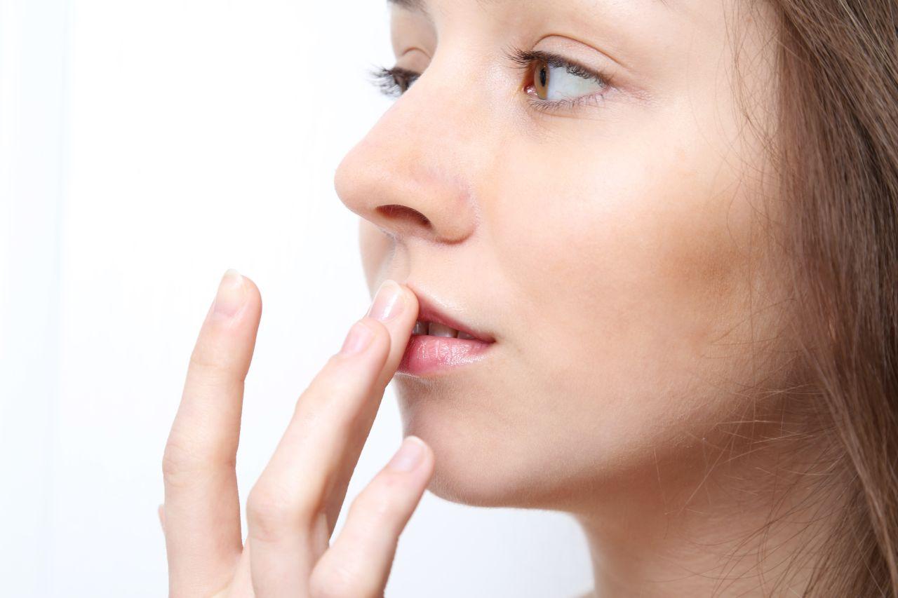 Jak pozbyć się opryszczki na twarzy?
